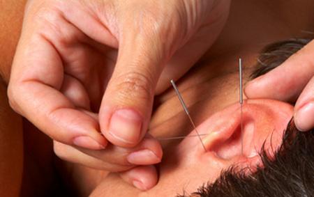Иглоукалываниие, как способ омолодить кожу и уменьшить появление морщин