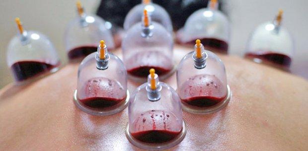 Кровопускание банками:когда и для чего делается?