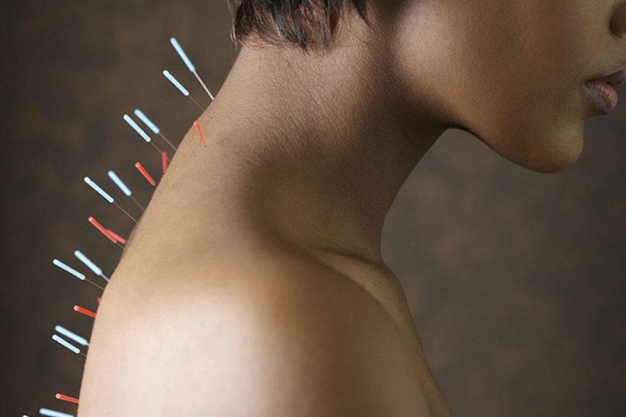 Как работает рефлексотерапия?